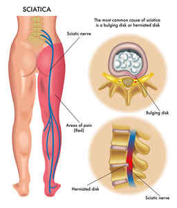 top-8-natural-treatments-for-sciatic-pain1